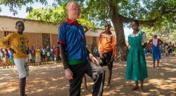 Making education safe for children with albinism in Malawi